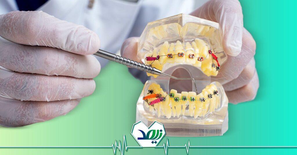 دندان مصنوعی چقدر عمر میکند؟