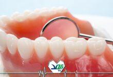مشکلات دهان و دندان سالمندان