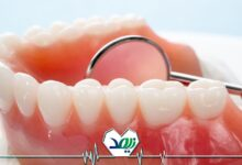 Photo of مشکلات دهان و دندان سالمندان