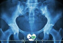 شکستن استخوان لگن درافراد مسن
