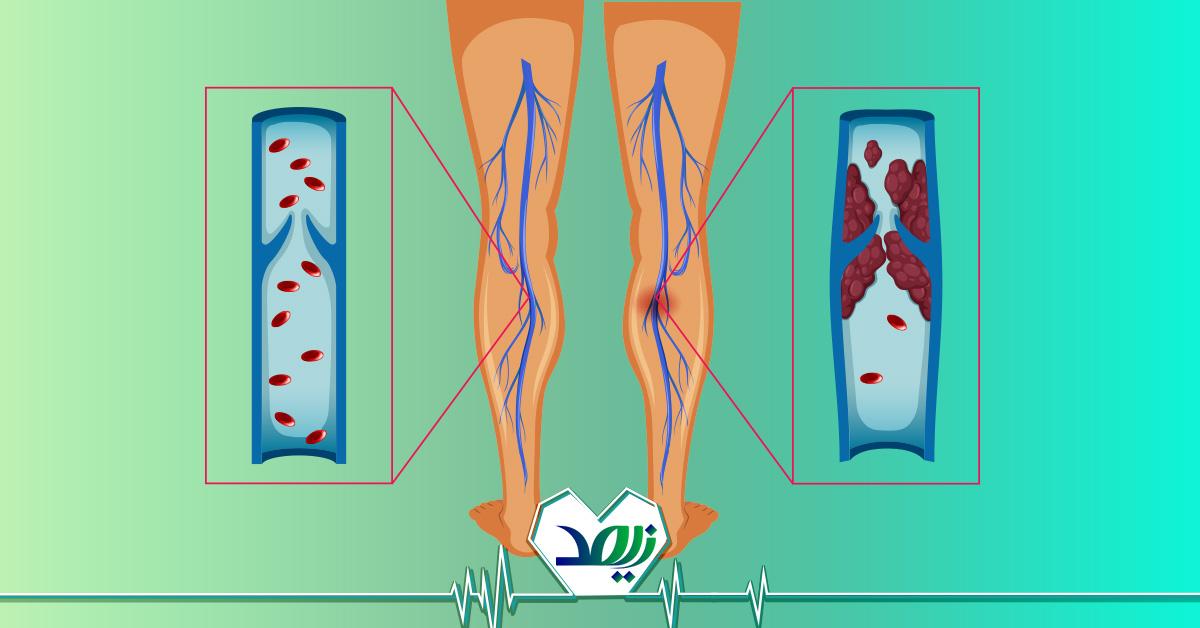 پیشگیری و درمان لخته شدن خون در پا