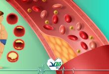 لخته شدن خون در سالمندان
