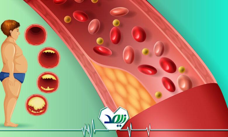 تصویر از لخته شدن خون در سالمندان، خطرات، پیشگیری و درمان آن