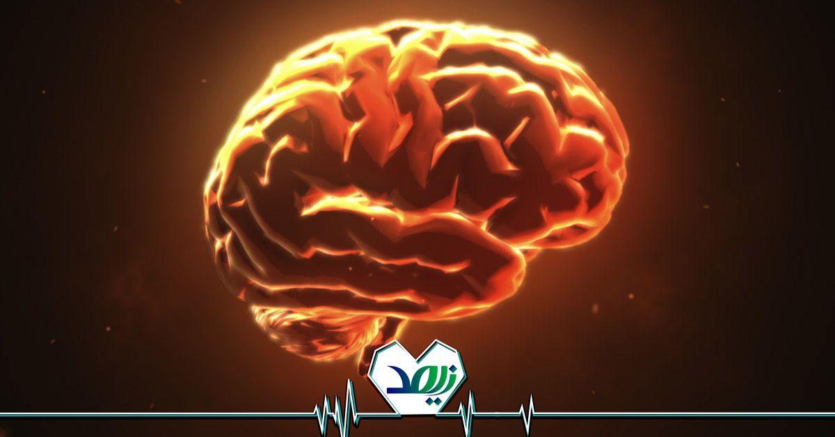 خطرات سکته مغزی