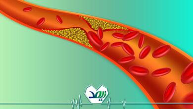 علائم کلسترول بالای خون